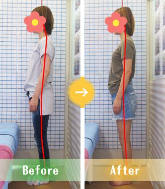 宇都宮市Oさんの産後骨盤矯正Before&After写真
