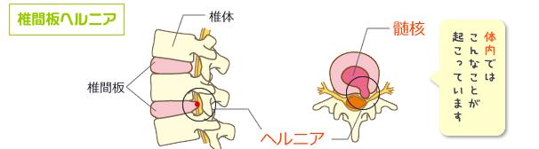 椎間板ヘルニアの仕組み