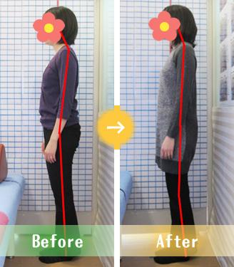 宇都宮市Kさんの産後骨盤矯正Before&After写真
