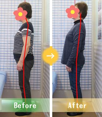 宇都宮市Mさんの骨盤矯正Before&After写真
