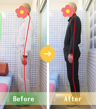 宇都宮市Sさんの骨盤矯正Before&After写真