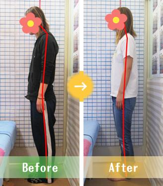 宇都宮市Kさんの骨盤矯正Before&After写真