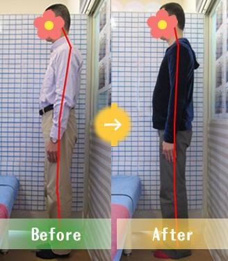 宇都宮市Oさんの骨盤矯正Before&After写真